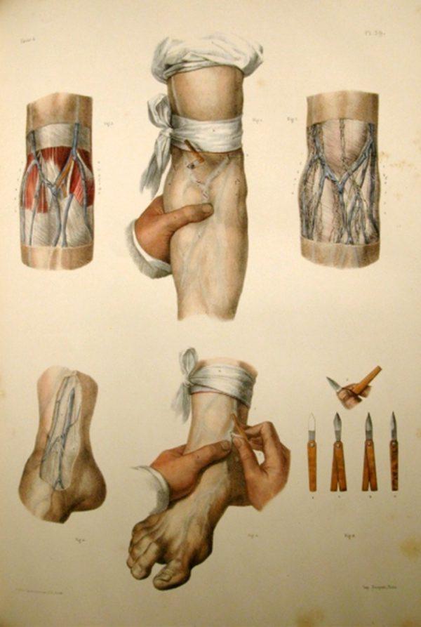 Rana Hamadeh, Jean Baptiste Marc Bourgery, Claude Bernard, and Nicolas Henri Jacob, Traité complet de l'anatomie de l'homme, 1866-1871). Courtesy of the artist © Temporary Gallery